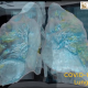 VR-Trip Takes Inside an Infected COVID-19 Lung